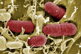 Some facts about E coli Bacteria  The Kidney